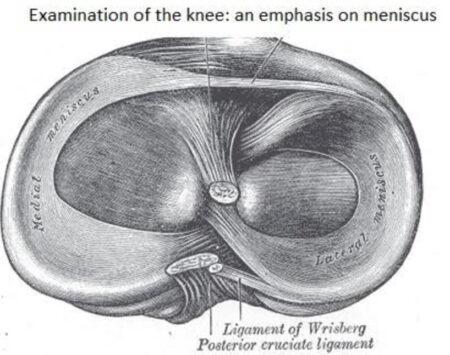 Meniscus Examination Research Guide