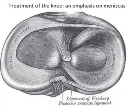 Meniscus Treatment Research Guide